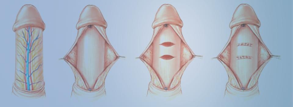 curvatura peniana