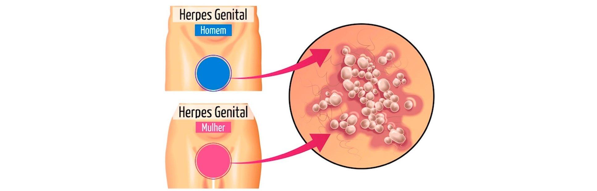 tratamentos para herpes genital